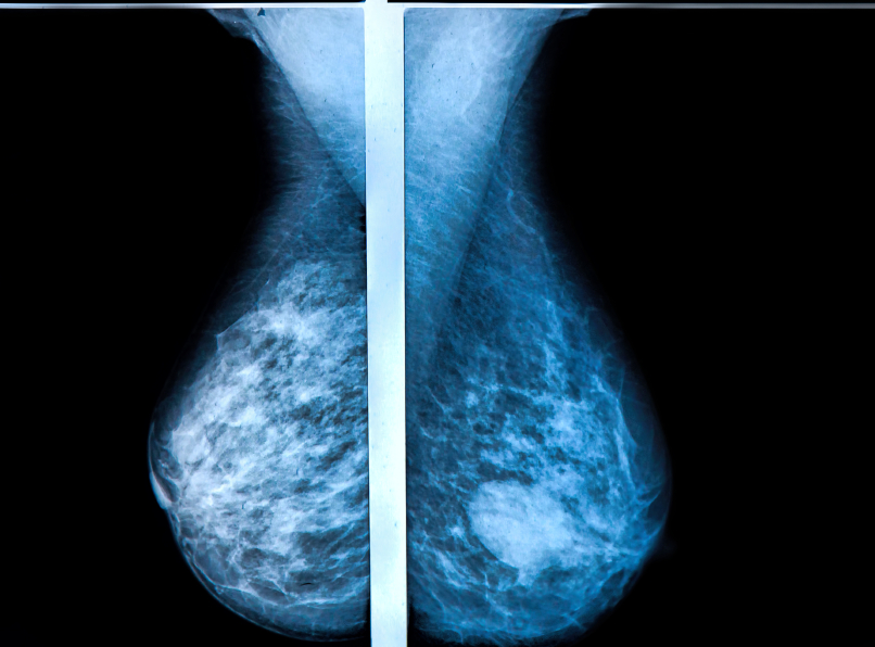 X-ray image of a mammography breast scan. image: photoprofi30