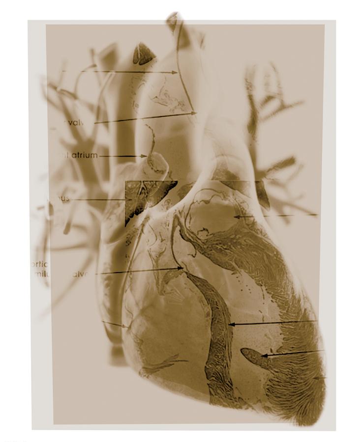 apr18_heart_003